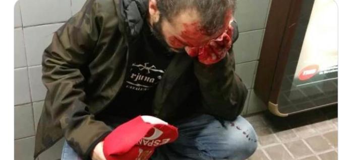 Gabriel Rufián justifica agresión hombre gorra y bandera española