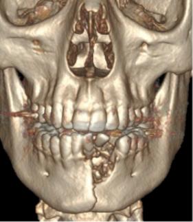 Joven estalla cigarro electrónico fractura mandíbula dientes